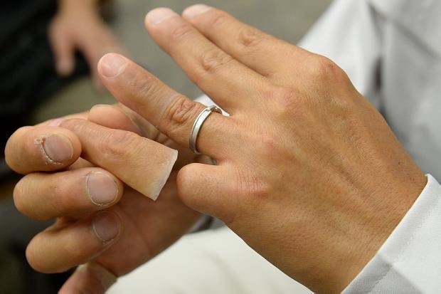 Yakuza sử dụng ngón tay giả để che đi những đốt ngón tay đã bị chặt